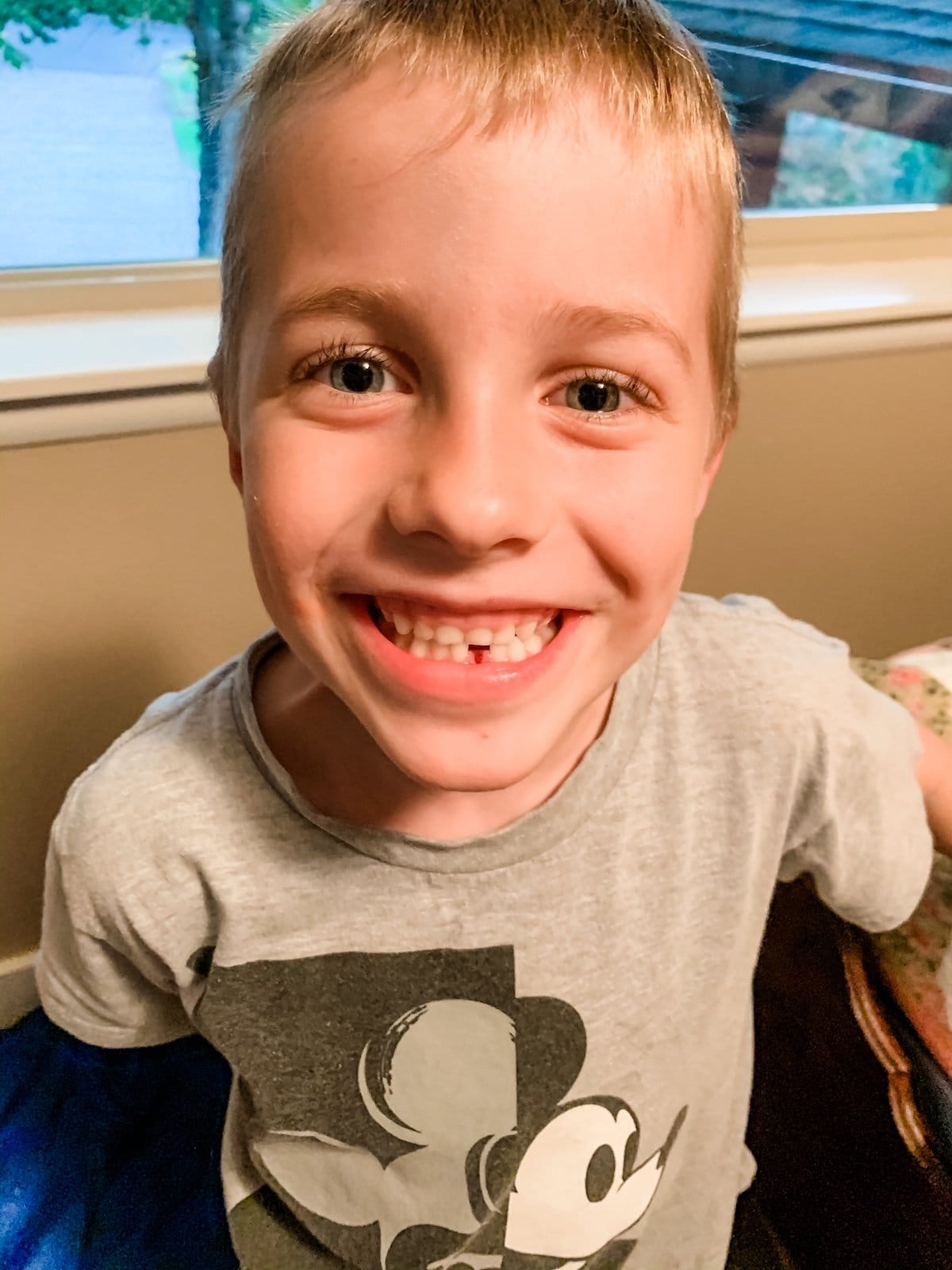 boy showing lost tooth